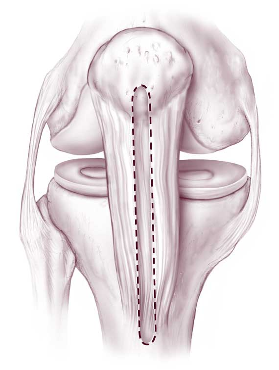 ligament knee surgery - 570×755
